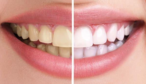 Blanqueamiento dental: antes y después.