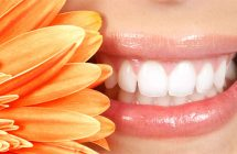 Estética dental.