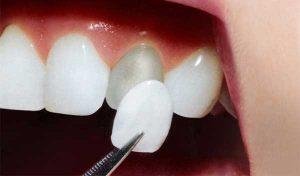 Carilla dental (funda solo para la parte de delante del diente).