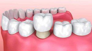 Corona o funda dental sobre diente desgastado.