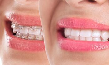 Tratamiento de ortodoncia con brackets estéticos de cerámica.