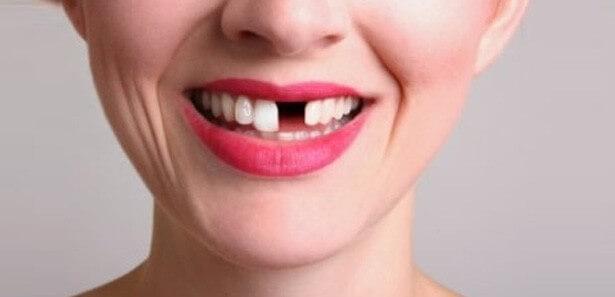Paciente sin un diente de delante.