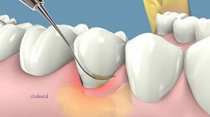 Raspado y alisado radicular para eliminar sarro más profundo y tratar la periodontitis.