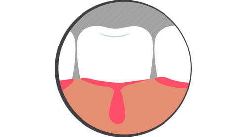 Sangrado de encías por gingivitis.