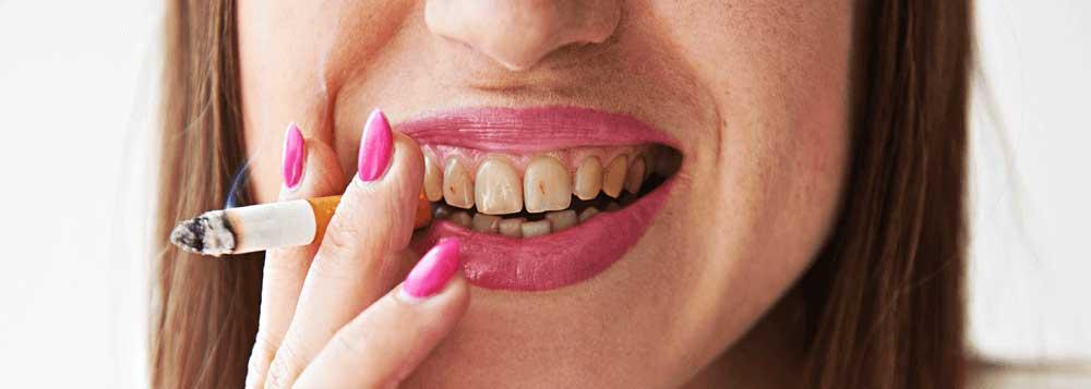 Boca con dientes con manchas típicas del tabaco.