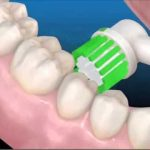 Cepillo dental eléctrico en el cepillado de la parte de dentro de los dientes.