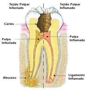 Diente con nervio con infección (mitad izquierda) y nervio inflamado (mitad derecha).
