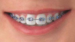 Gomas de ortodoncia que sujetan el arco a los brackets