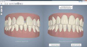 Estado inicial y resultado a obtener con la ortodoncia invisible.