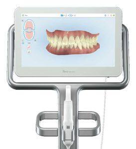 Imagen de la boca del paciente a través del escáner.