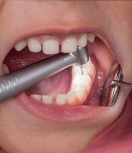 Limpieza de caries dental