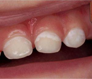 Mancha blanca de inicio de caries dental