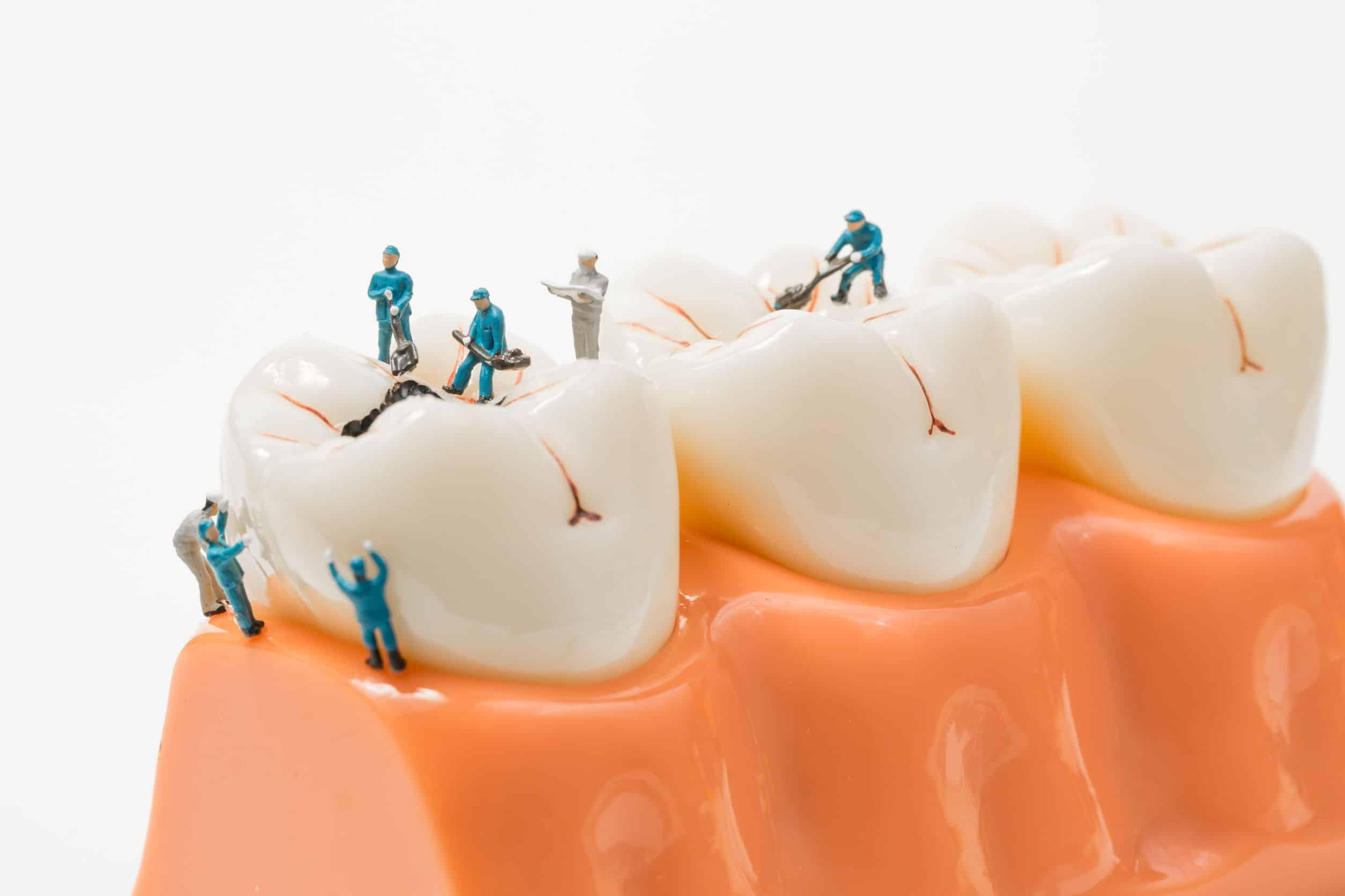 Reconstruccion de una caries dental
