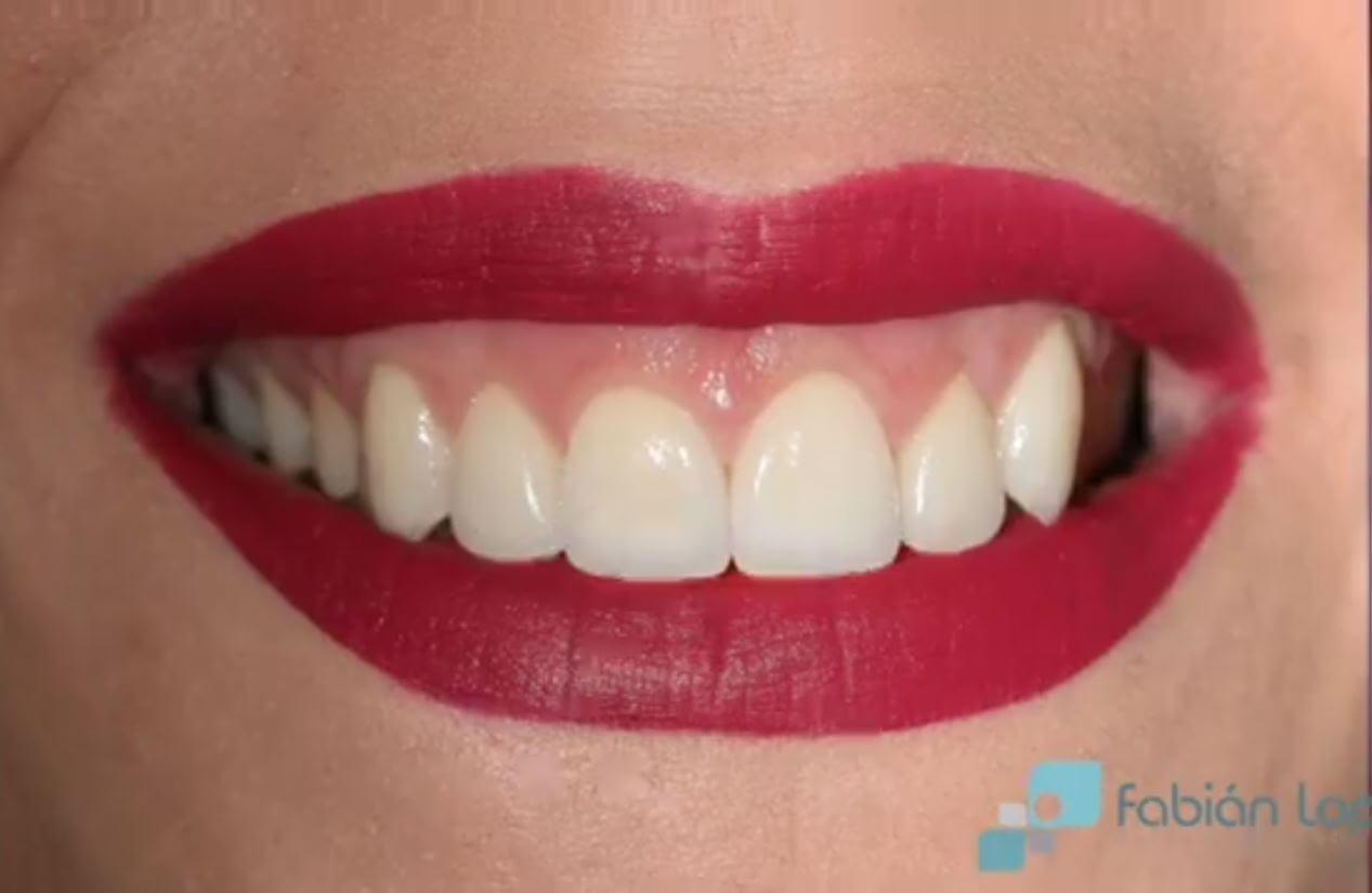 después estética dental