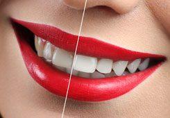 estetica dental en alicante