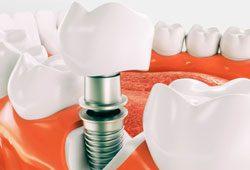 implante dental alicante