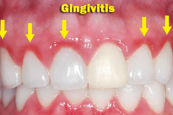 gingivitis-enjuague