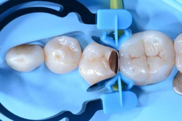 obturacion-diente