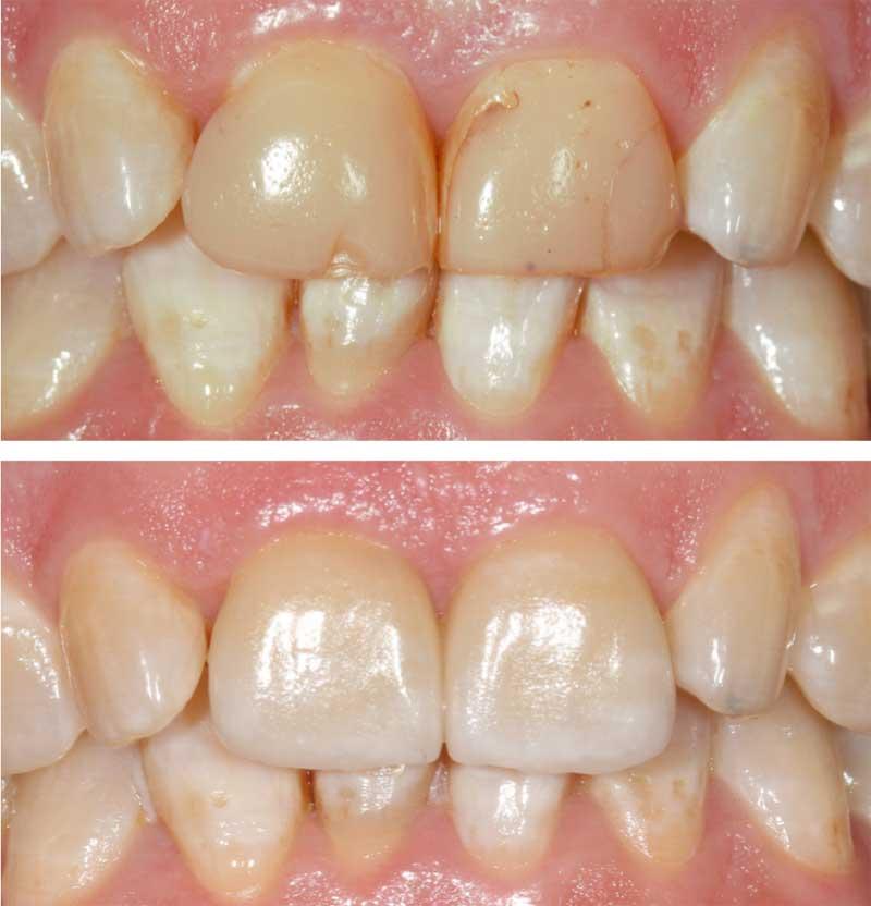 caso de existo dental
